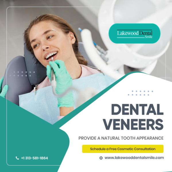 Dental_Veneers